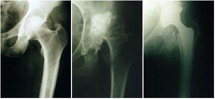 Οστεοαρθρίτιδα του ισχίου