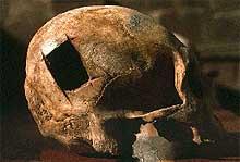 Επιτυχείς εγχειρήσεις στο κρανίο πριν 5500 χρόνια