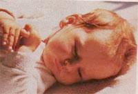 Βακτήριο ενοχοποιείται για το σύνδρομο αιφνιδίου θανάτου των βρεφών