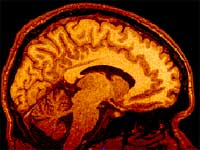 Η μαγνητική τομογραφία βοηθά στην πρώιμη διάγνωση της σχιζοφρένειας