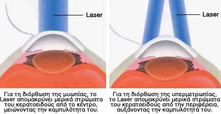 Πετάξτε τα γυαλιά, κρύψτε τους φακούς επαφής με την βοήθεια των laser