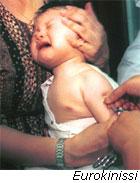 Εμβόλια χωρίς βελόνες