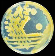 Βακτήρια μέσω ταχυδρομείου