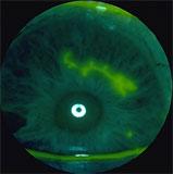 Βιονική όραση