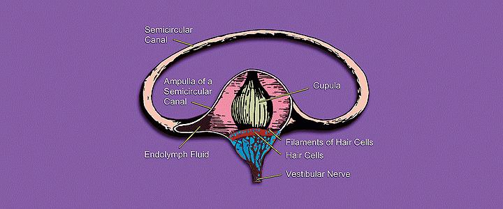 Νόσος του Meniere