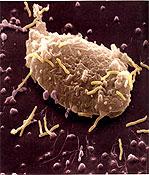 Διατροφή και κληρονομικότητα βοηθούν το μικρόβιο του έλκους