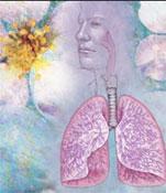 Αλλεργική Ρινίτιδα και Ασθμα: μία οδός, μία νόσος