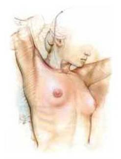 Τι  πρέπει να γνωρίζουν οι γυναίκες για την αύξηση των μαστών και τα ενθέματα σιλικόνης και φυσιολογικού ορρού.