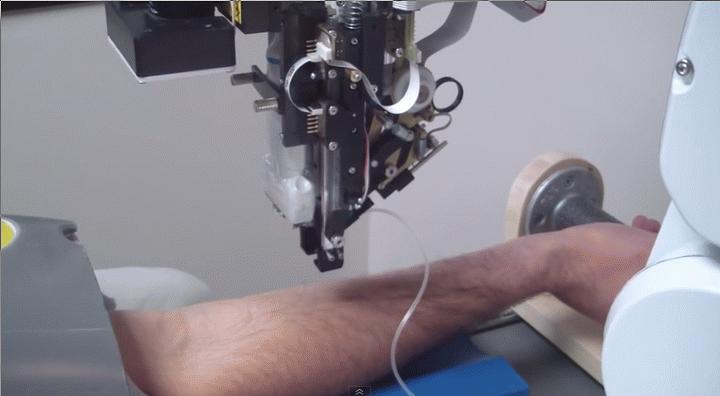 You are currently viewing Robo-nurse, το ρομπότ που κάνει αιμοληψίες