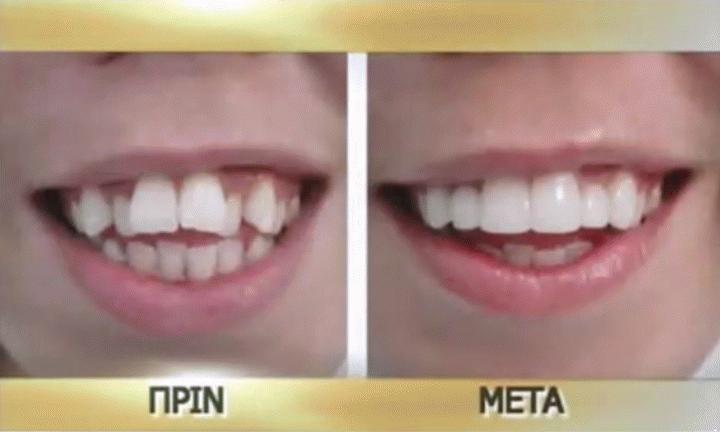 Χαμογελάστε άφοβα με μικρογλυπτική