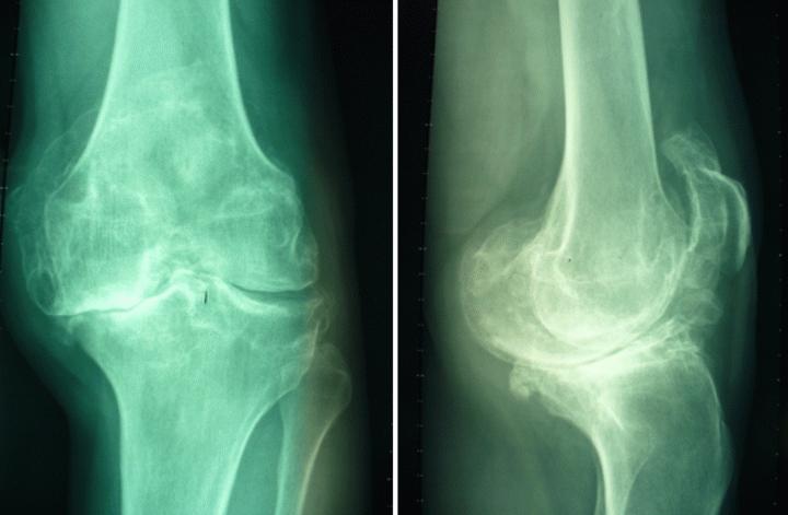 Άμεση βάδιση μετά από αντικατάσταση γόνατος, λόγω χρόνιας οστεοαρθρίτιδας