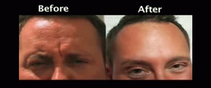 Νέα τεχνική botox αφαιρεί ρυτίδες χωρίς να αλλοιώνει τη φυσική έκφραση του προσώπου