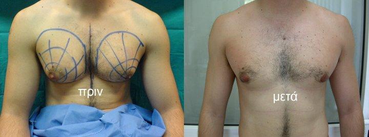 H πλαστική χειρουργική δίνει λύσεις… κοιλιοπλαστική και γυναικομαστία. Όσα πρέπει να γνωρίζετε!