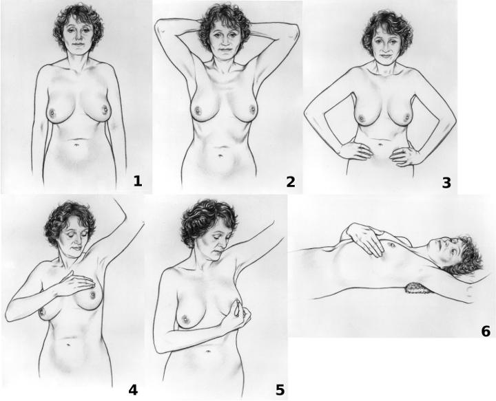 Η αυτοεξέταση ως προληπτική εξέταση κατά του καρκίνου του μαστού