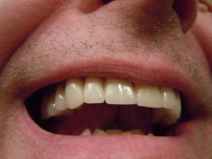 Τι είναι η Στοματολογία – Παθολογία του Στόματος
