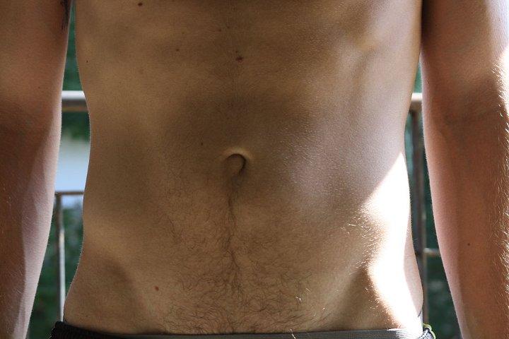 Κοιλιοκήλη: Αιτίες, συμπτώματα και αντιμετώπιση