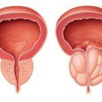 Προστατίτιδα: Μία νόσος που μπορεί να θεραπευτεί με την απαραίτητη πρόληψη