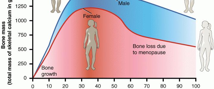 Γιατί η οστεοπόρωση προτιμά τις γυναίκες;