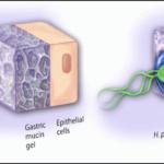 Τι είναι το Helicobacter pylori;