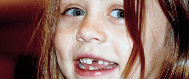 Παιδιά με γερά δόντια!