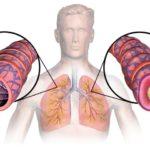 Φαρμακευτικό Μανιτάρι Κόρντισεπς και Άσθμα