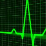 Ηλεκτροκαρδιογράφημα μία απλή και χρήσιμη εξέταση