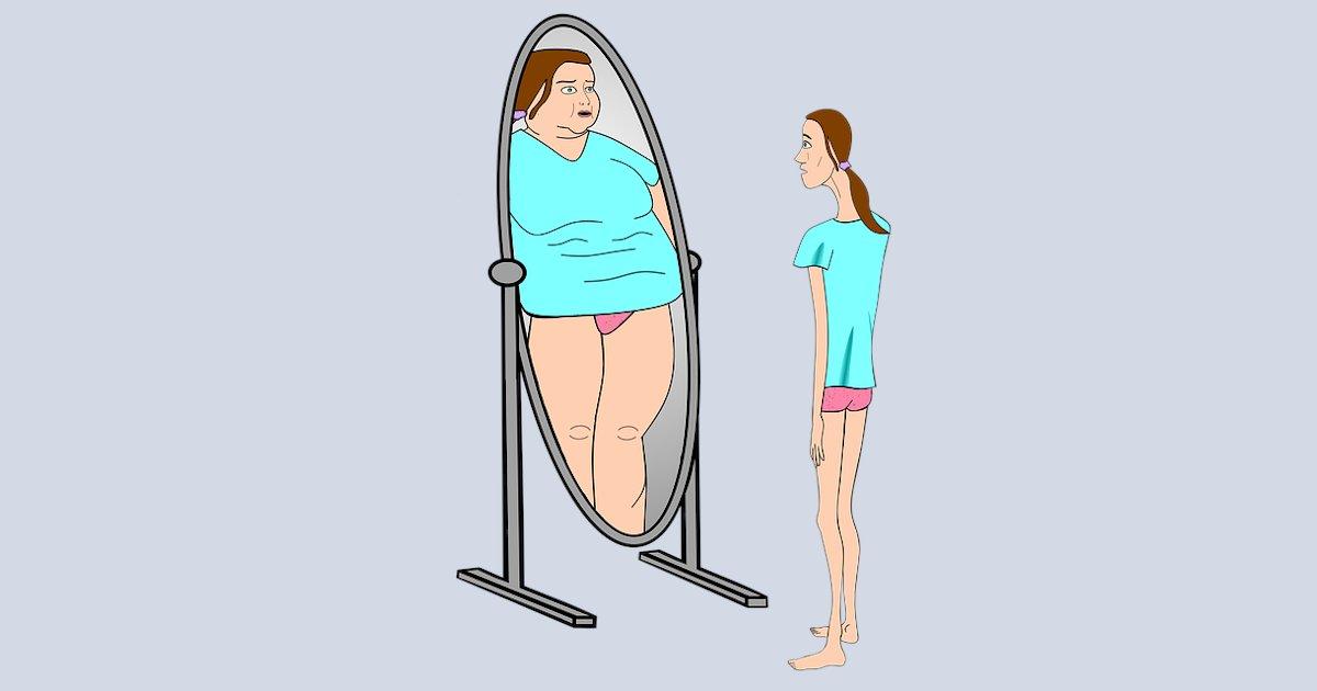 Τι είναι η ψυχογενής ανορεξία;