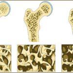 Οστεοπόρωση: όλα όσα θέλετε να γνωρίζετε